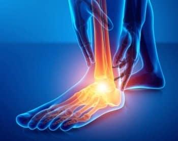 Gestion de la douleur après chirurgie du pied