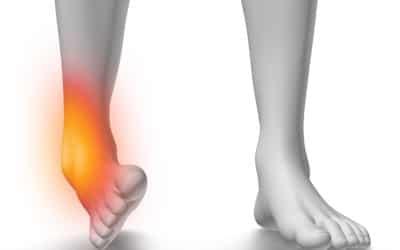 Chirurgie de l'instabilité de cheville sous arthroscopie