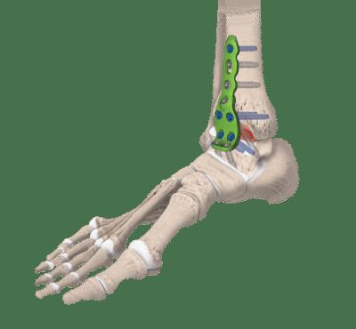 arthrodèse de la cheville