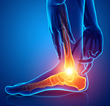 Comment réparer efficacement les tendons fibulaires?
