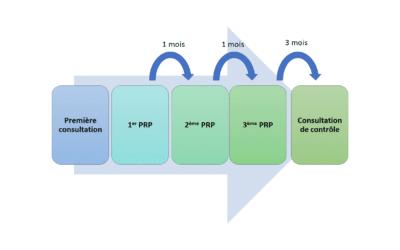 Injection combinée de Plasma riche en plaquettes et d'acide hyaluronique.