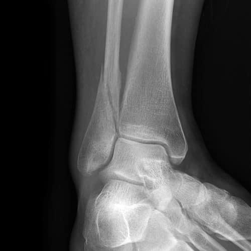 radiographie d'une fracture de cheville