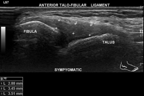 échographie du ligament talo fibulaire antérieur de cheville
