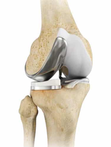 anatomie implant de genou