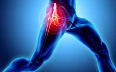 Quelle qualité de vie après une prothèse de hanche?