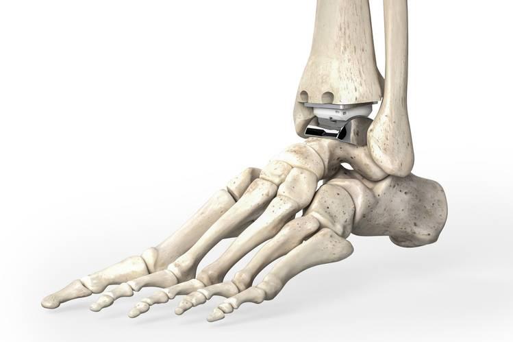 La prothèse de cheville pour traiter l'arthrose.